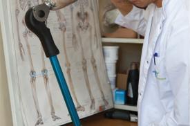 "AB ""Ortopedijos technika"" specialistas tobulina kojos protezą"