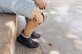 Sėdintis pacientas su protezu